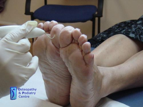 phoca thumb l Testing-for-neuropathy-(diabetes)