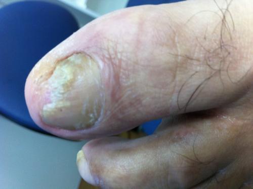 phoca thumb l fungal nail